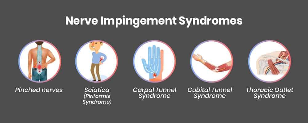 4. Nerve Impingement Syndromes